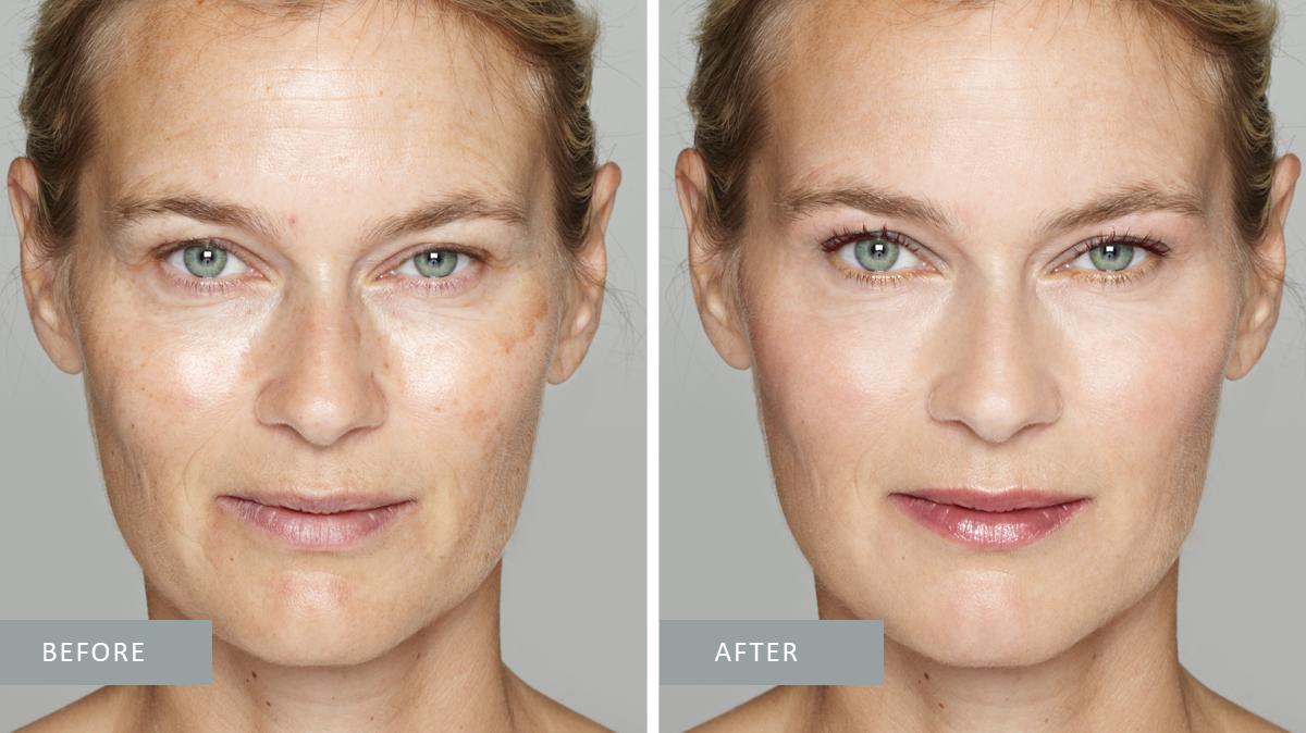 Peel - Aging