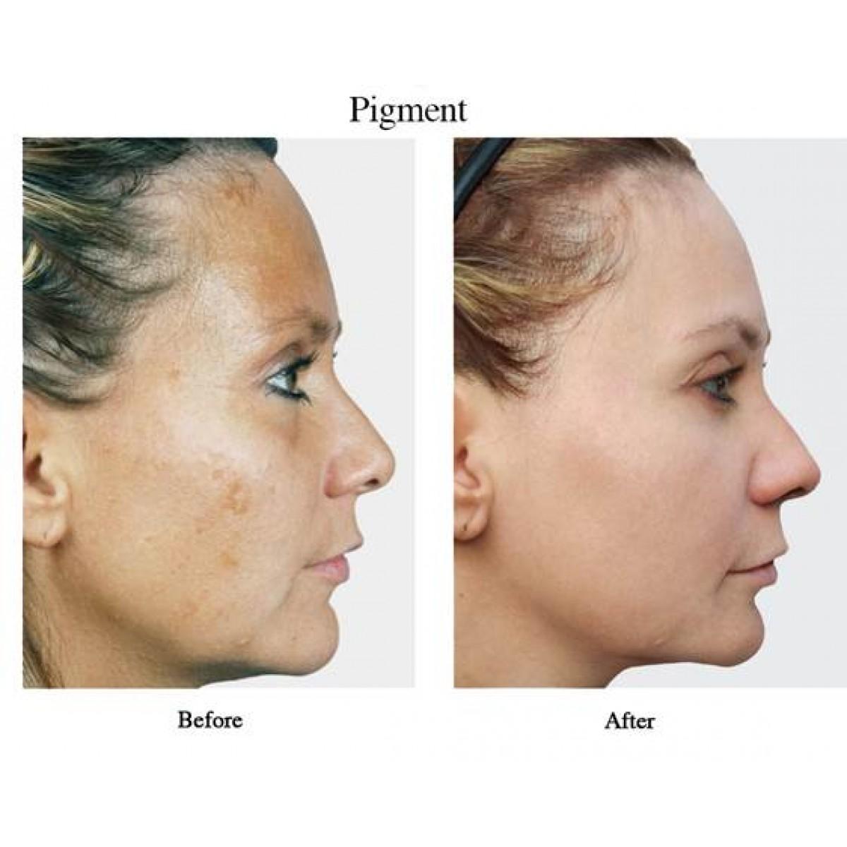 VisaoMD Peel - pigment