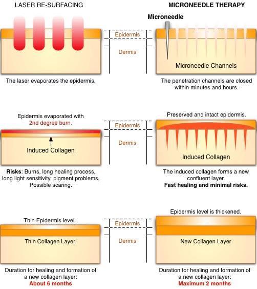 Microneedling vs. laser