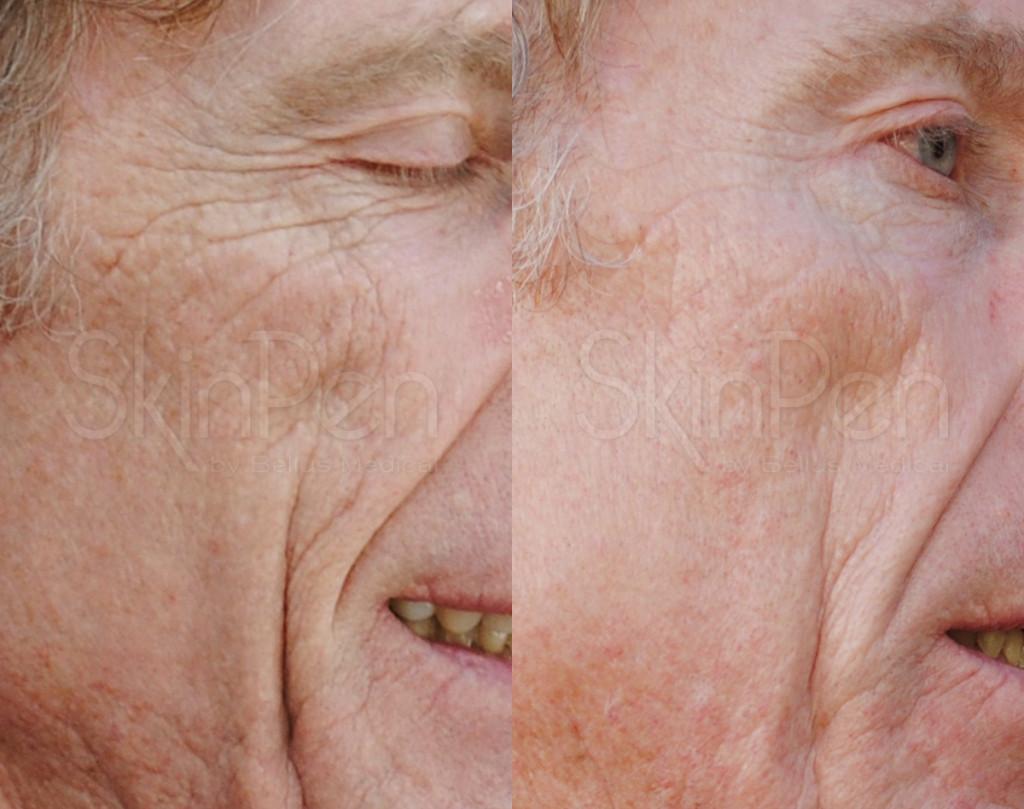 Skin Pen anti aging, 2 tx's