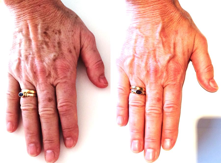 lumecca-hands